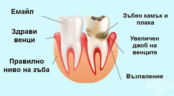 Инфекциозни заболявания на зъбите. Учени от Хелзинки са доказали връзката между апикален периодонтит (инфекция на кореновите канали) и коронарен синдром. Хората с тази болест на зъбите са със 2,7 пъти по-голяма вероятност да имат проблеми с коронарната ци
