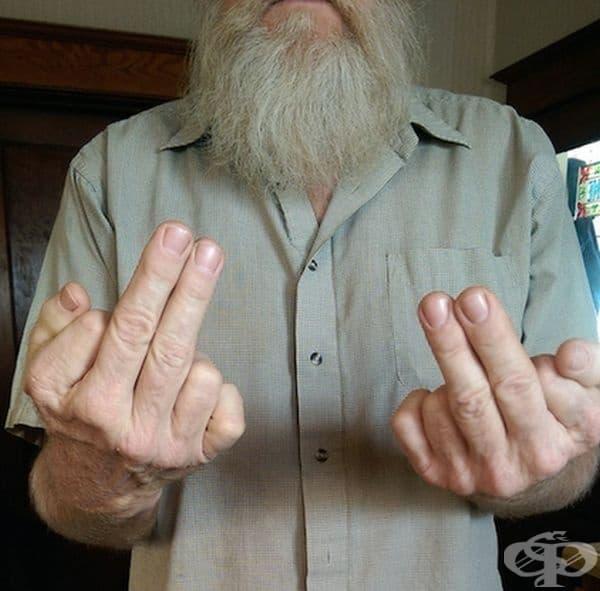 Точи мъж е роден с по 6 пръста и на двете ръце.
