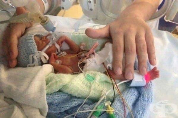 Бебе, което тежи само 500 грама, оцелява, за да расте здраво.