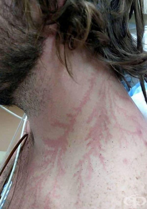 19 души, които са оцелели след удар от мълния, показват пораженията по кожата им