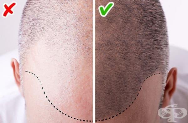 Оплешивяване. Ранното или бързо оплешивяване при мъжете говори за проблеми с кръвоносните съдове при 70% от случаите. Това може да е признак също за повишено ниво на тестостерона или развитие на диабет.