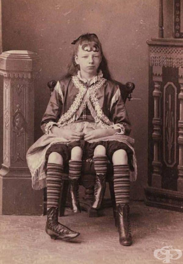 Жозефина Корбин - жената с четири крака и две вагини. Актрисата е дала живот на 5 деца и имала щастлив семеен живот.