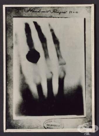 Първата рентгенова снимка, направена от Вилхелм Рьонтген през 1895 година