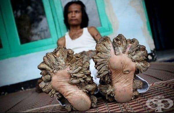 Деде Косвар – човекът дърво. Постепенно ръцете, краката и тялото на човек се обсипва в твърди дървесни брадавици, които завземат големи повърхности. Това се дължи на рядкото заболяване верруксиформална епидермодисплазия.