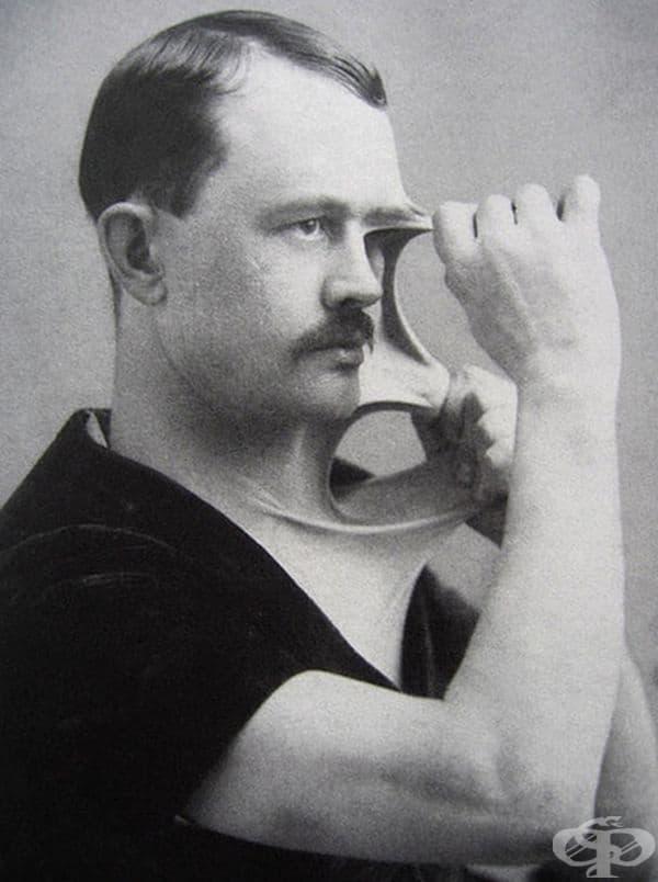 Феликс Верле - човекът с най-еластична кожа от началото на 19 в.