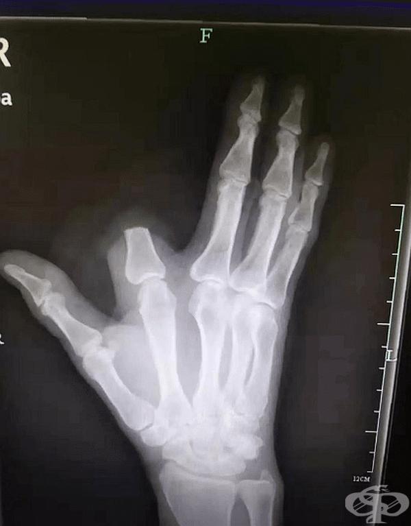 Китаец отрязва пръста си след ухапване от змия, за да спаси живота си. Оказало се е, че змията не е била отровна.