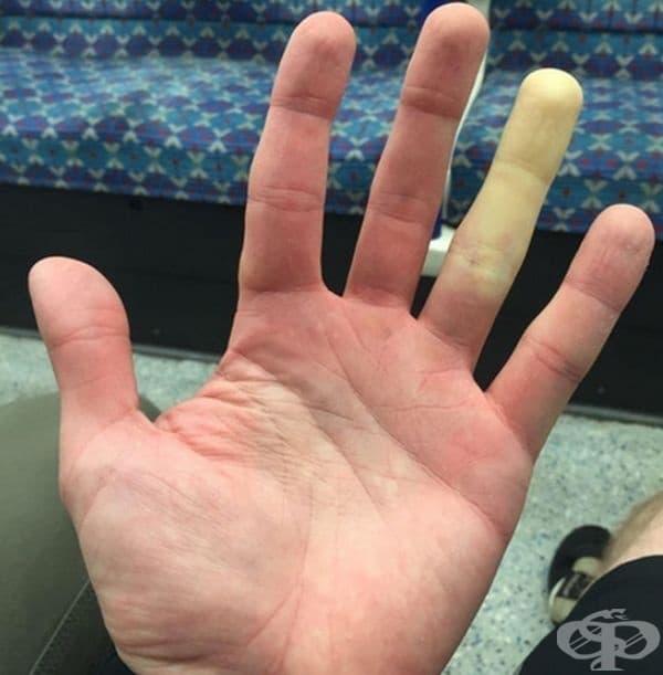 Безименният пръст при този човек побелява, когато му е студено.