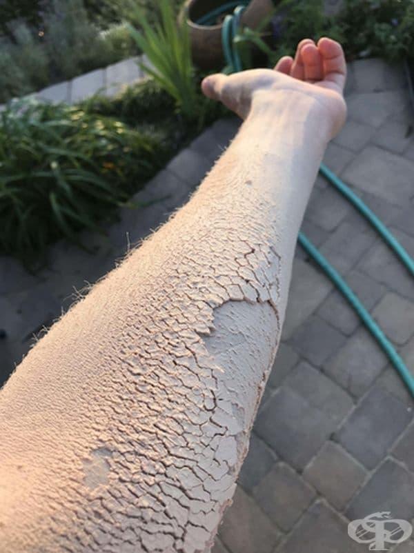 Прах от дървесина. Ръката изглежда суха и напукана.