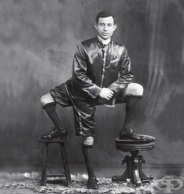 Франческо Лентини е човекът с три работещи крака с различна дължина, шестнадесет пръста на краката и два пълноценни полови органа.