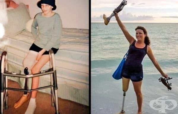 Тази жена е победила рака и днес тя изглежда по този начин.