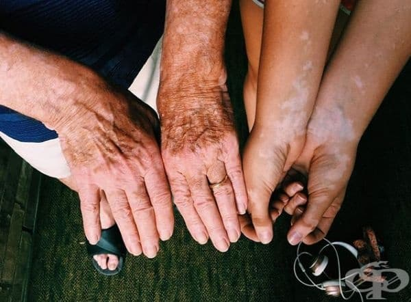 Дядо и внучка страдат от витилиго.