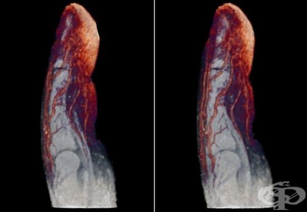 Кръвоносни съдове. Ето защо веднага започва да тече кръв, когато нараните пръста си.