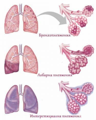 Видове пневмония