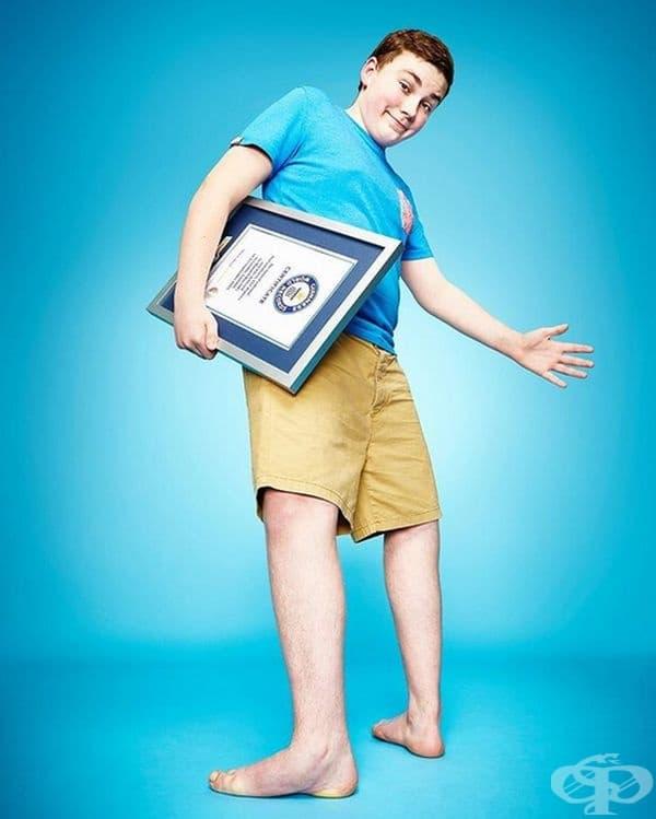 Максуел Ден от Великобритания е момчето с най-гъвкави крака в света - десният крак може да се завърти до невероятните 157 °, а левия крак на 143 °. Той държи рекорда за най-голямо въртене на своите крака.