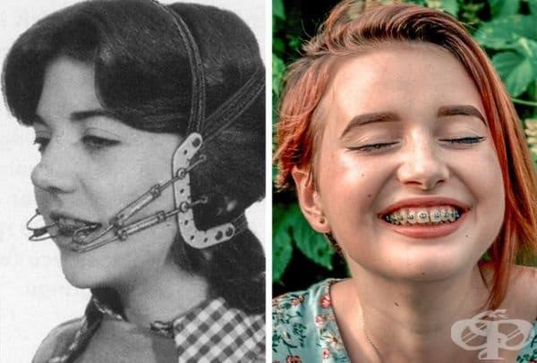 Дентални брекети преди и сега.
