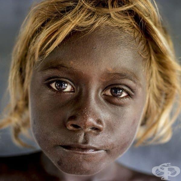 """Тъмнокожите жители на Соломоновите острови имат """"собствен"""" ген, който придава рус цвят на тяхната коса."""