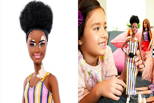 Новите кукли Барби - с витилиго, без коса и с редки заболявания - изображение