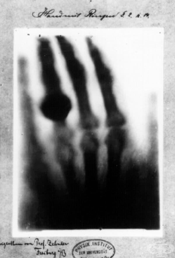 Това е първото рентгеново изображение в света, направено от Вилхелм Рентген на 22 декември 1895 г.