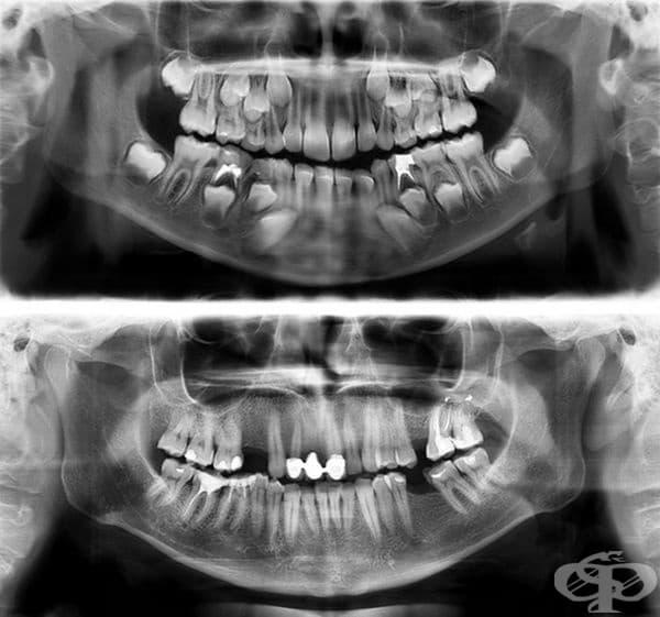 Така изглеждат зъбите на човек на 7 години (по-горе) и на 30.