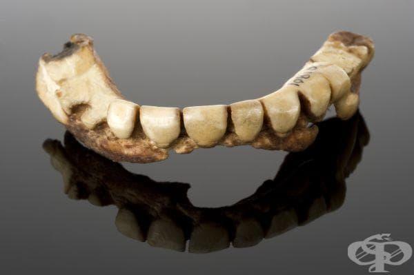 Постепенно този материал започнал да се заменя с вулканит около 1800 г. Зъбната протеза от снимката е била ремонтирана и към този момент е почти невъзможно да бъде носена.