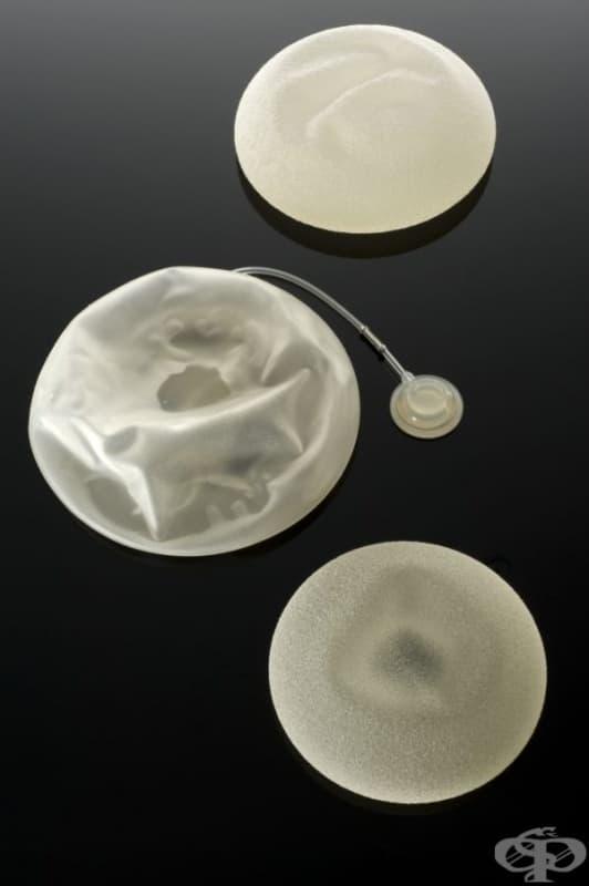 Гръдни импланти от 2003 година