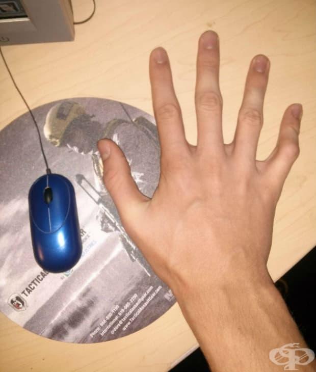 Работят с мишката на компютъра само един пръст