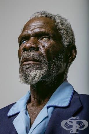 67-годишният Герд Гаманаб търси лечение твърде късно: годините труд в Намибия под слънце и прах унищожават роговиците му. Неговата слепота вероятно е могла да бъде предотвратена.
