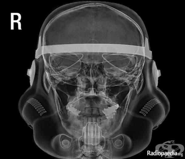 Понякога рентгенолозите се уморяват да гледат снимки и да решат да се шегуват.