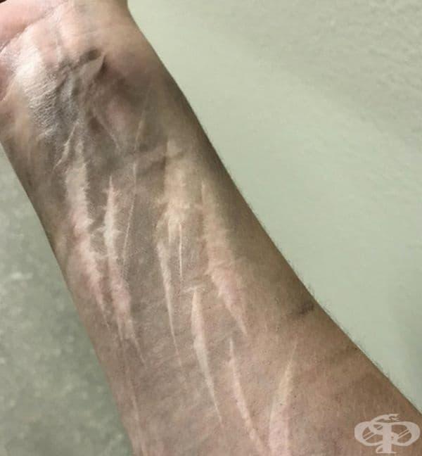 Ръцете са мръсни, но белезите са чисти.
