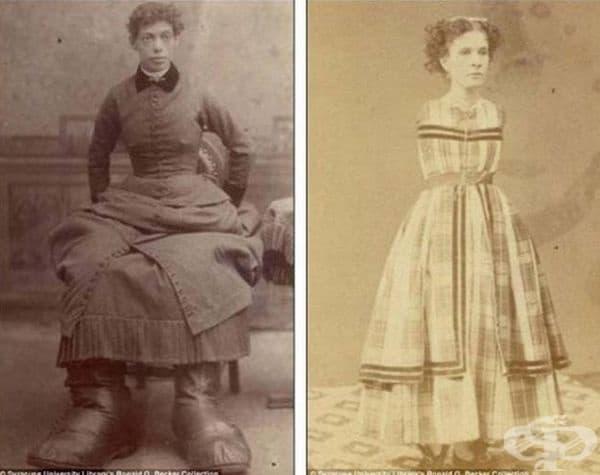Жената на първата снимка е родена с огромни крака, а жената от втората без ръце.