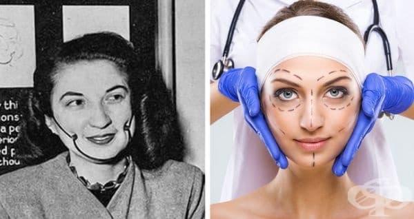 Промяна на лицето чрез пластична хирургия през 1930 г. и днес.