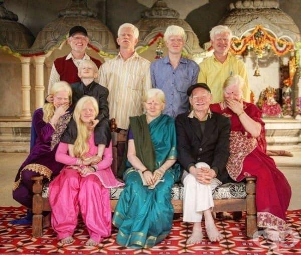 """""""Ние сме най-голямото семейство албиноси в света и се гордеем с това."""""""