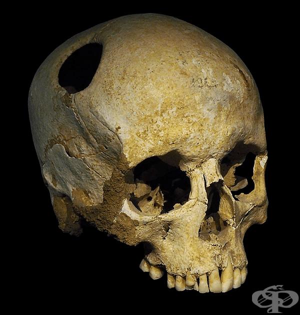 Трепанацията-пробиване и отстраняване на част от черепа, за да се облекчи налягането от кървене след удар на главата. В западната медицина до 19 век трепанацията се е използвала широко за лечение на травми на главата.