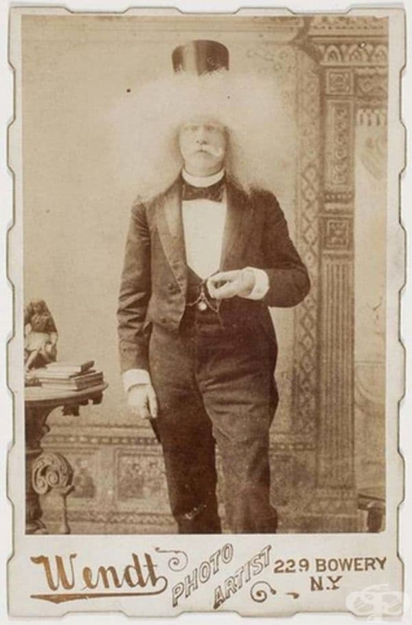 Мъж албинос.