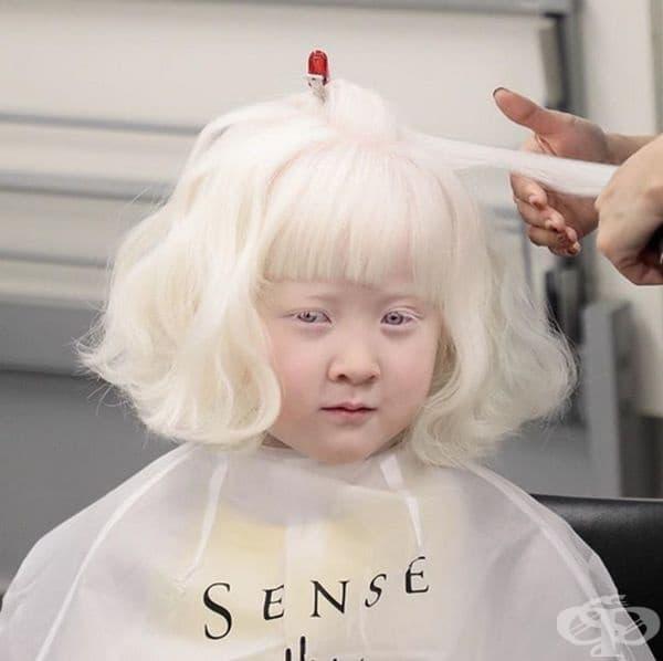 Сред източните народи албиносите са рядкост.