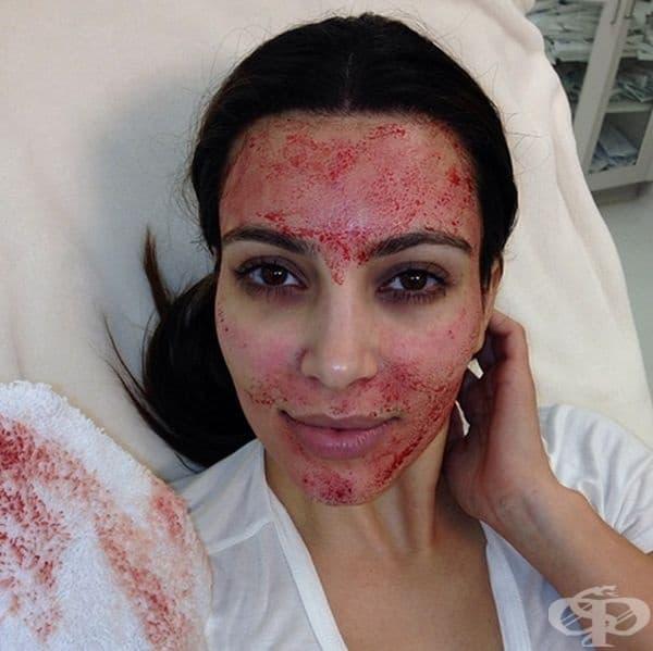 """Ким Кардашян. Тя признава, че се подлага на така нареченият """"вампирски лифтинг"""" или плазмолифтинг. Лекарят взема кръв от пациента и въвежда богатата на тромбоцити плазма или PRP в дермата на лицето и шията."""