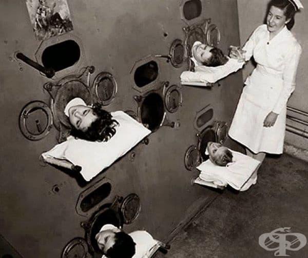 Деца, поставени в машина, известна като Железния дроб или Смукача, симулираща процеса на дишане. Използвала се е по време на полиомиелитната епидемия, 1937 г.