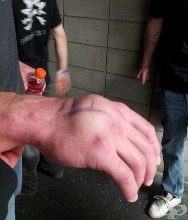 Ръка на боксьор, след удар по противника.