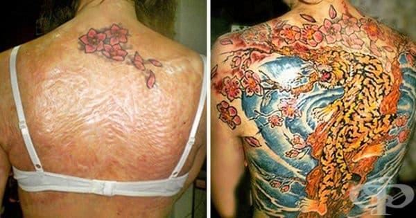 Гениален вариант да скриете белези от изгаряния.