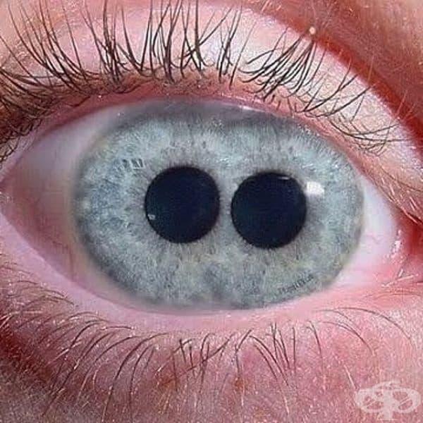 """Състоянието, при което окото има повече от една зеница, се нарича """"поликория""""."""
