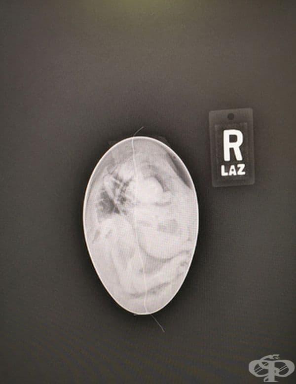Рентгенова снимка на яйце от кондор в Калифорния.