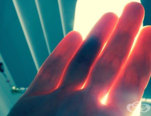 Този човек вижда кръвоносните съдове на ръката си, при излагането й на светлина.