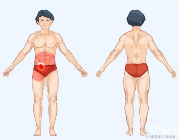Апендикс. Апендиксът се намира в долната дясна област на корема, но болката може да засегне цялата област на стомаха, както и дясното бедро. Други признаци на проблеми с апендикса са гадене, повръщане, повишена температура и запек или диария.
