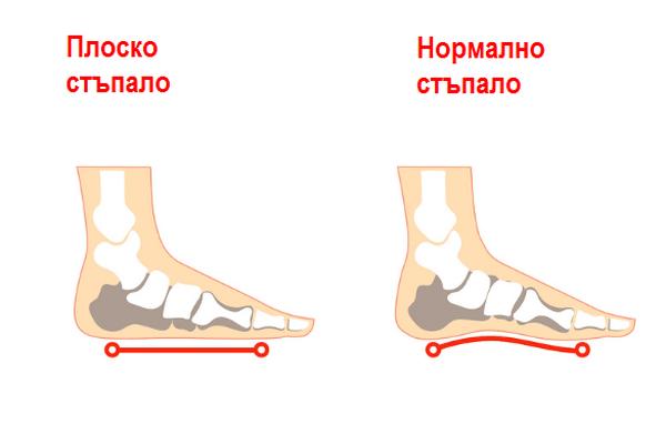 Плоскостъпие. Бебетата обикновено се раждат с плоско стъпало и израствайки се образува извивката му. Състоянието не е болезнено или вредно и се променя, когато костите и мускулите на децата започнат да се развиват и да стават по-гъвкави.
