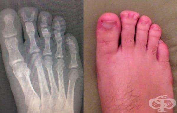 """""""Този човек е мечтаел да види рентгенова снимка на крака си в продължение на 22 години."""""""