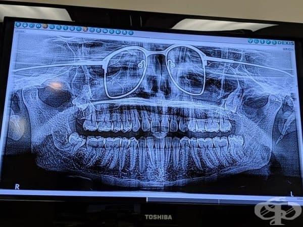 Панорамна снимка на челюстта. Мъжът е забравил да си свали очилата.