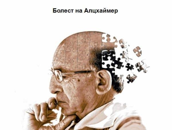 """Учени от университета """"Джон Хопкинс"""" са установили, че сънят е нужен, за да се прочисти от бета-амилоидни отлагания от мозъка, които са характерен признак на болестта на Алцхаймер. Липсата на сън обаче предотвратява отстраняването на """"мозъчните отпадъци""""."""