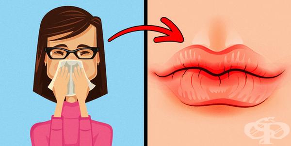 Сухи и напукани устни. Това може да показва, че тялото се нуждае от повече течности. Основните причини са климатът, стресът или алергия (придружена със сърбеж). При първите две е препоръчително повече течности, а при третата - консултация със специалист.