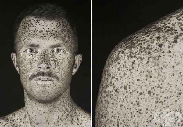 При ултравиолетова светлина се виждат всички скрити черви на кожата.