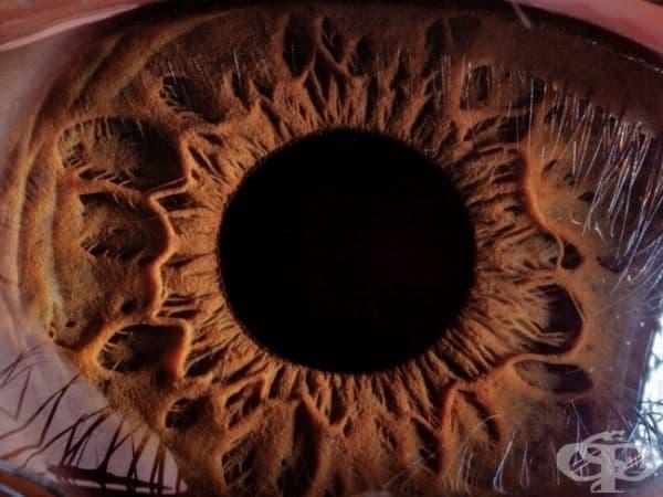 Затваряне на човешко око, Армения. (Снимка: Сюр Манвеян)
